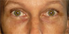 Diane's Eyes After Facial Exercise