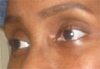 Nonie Eyes After Facial Exercises