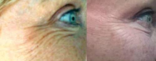 Linda: Crow's Feet Before & After